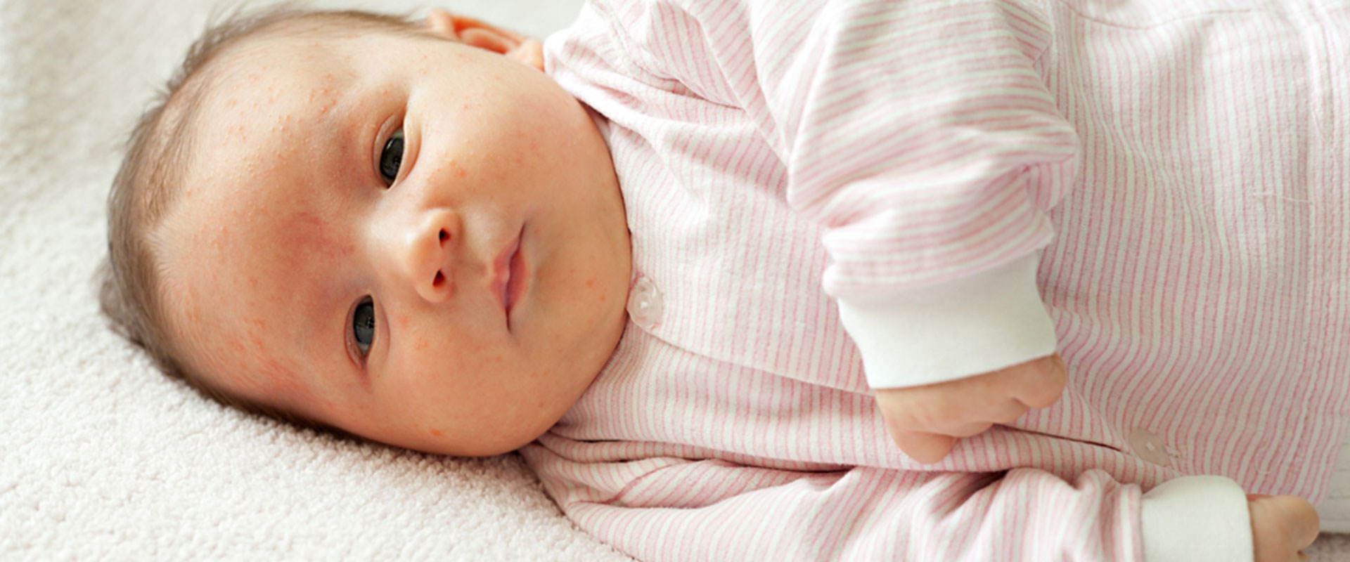 Bebeklerde isilik nasıl geçer